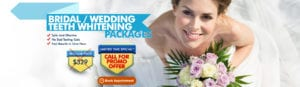 Bridal Wedding Teeth Whitening Packages - Call For Promo Offer2 (1)