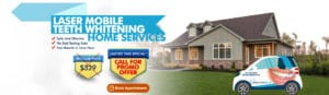 Laser Mobile Teeth Whiting Home Services– Call For Promo Offer (1)