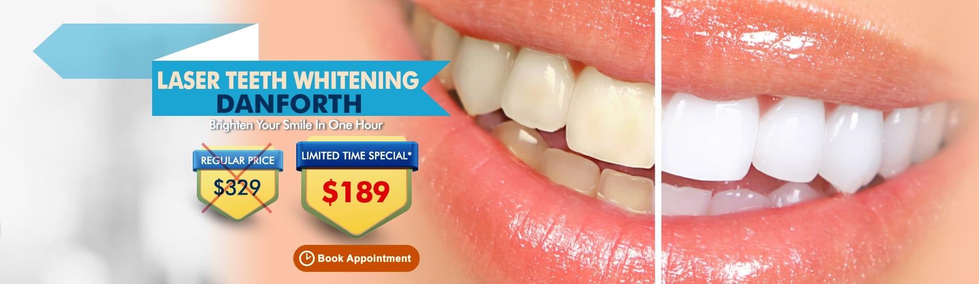 Laser Teeth Whitening Danforth - $329 $189