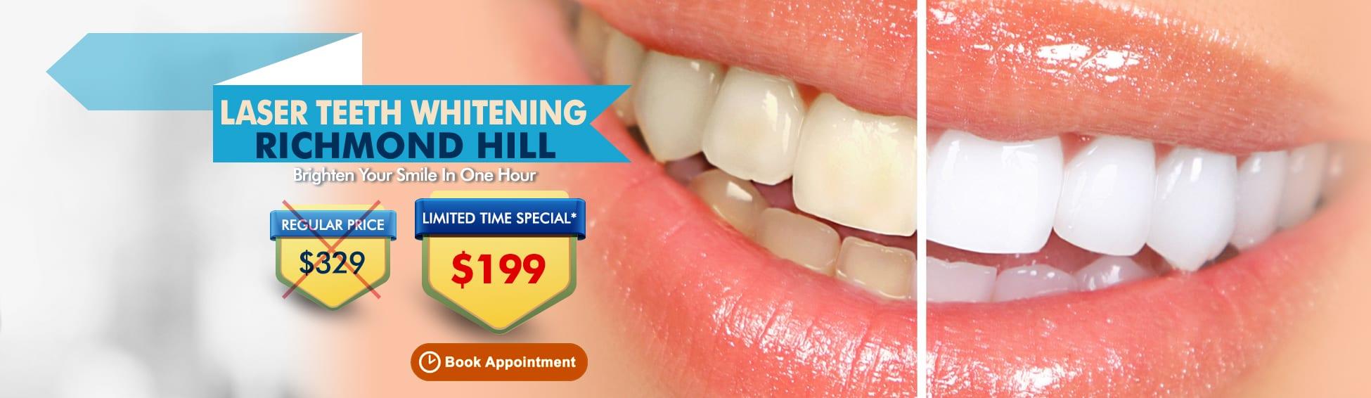 Laser Teeth Whitening Richmond Hill Ontario - $329 $199 _Richmond HIll