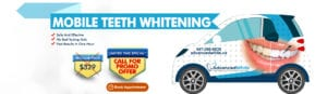 Mobile Teeth Whitening Call For Promo Offer (1)