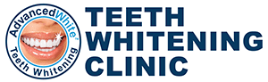 Teeth Whitening | Laser Teeth Whitening