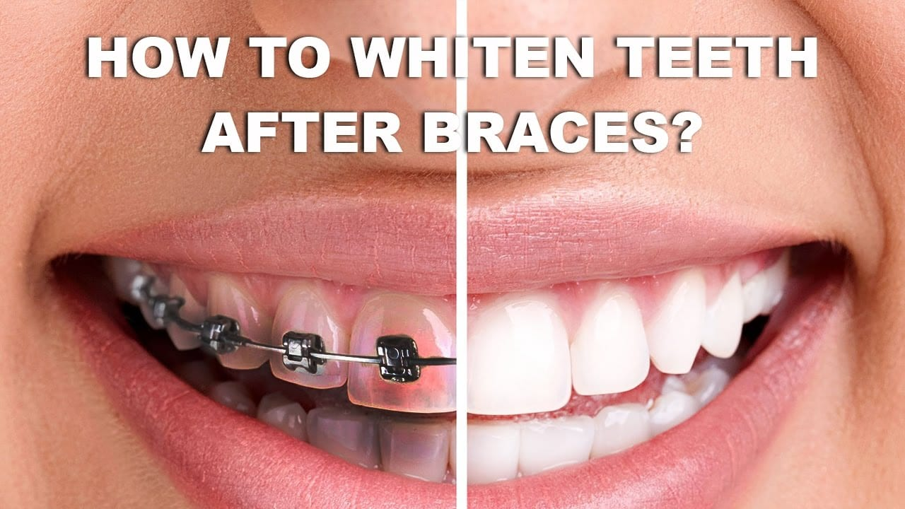 whitening teeeth from braces removal 2