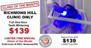 Teeth Whitening Richmond Hill